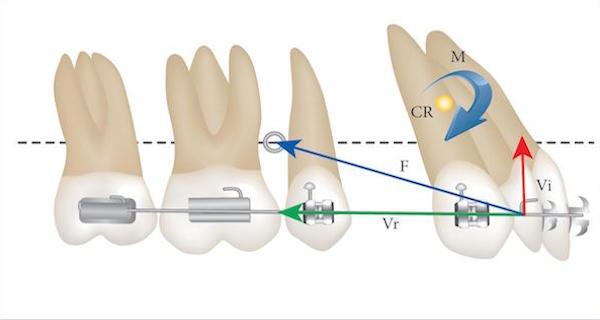 Эволюция ортодонтической механики и брекетов