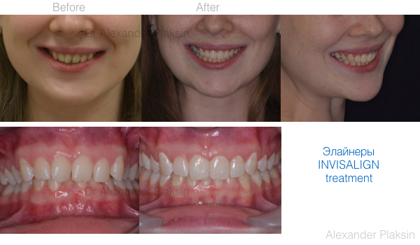 before-after-600-350-invisalign-001